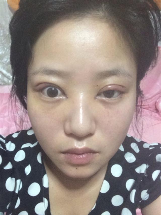 Ham đẹp như gái Hàn, nhiều phụ nữ Trung Quốc ôm hận thiên thu vì phẫu thuật thẩm mỹ hỏng - Ảnh 5.