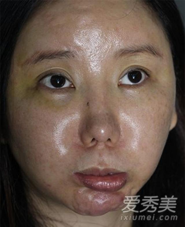 Ham đẹp như gái Hàn, nhiều phụ nữ Trung Quốc ôm hận thiên thu vì phẫu thuật thẩm mỹ hỏng - Ảnh 6.