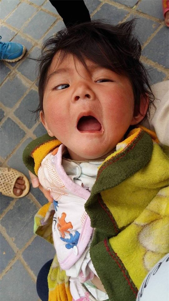 Sau hơn 3 tháng được mẹ nuôi chăm sóc, bé gái 14 tháng tuổi nặng 3,5kg giờ ra sao?