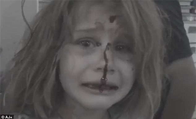 Bé gái Syria kêu khóc gọi cha với khuôn mặt đầy máu sau vụ nổ bom - Ảnh 2.