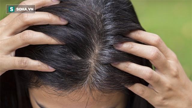 Nhìn tóc cũng có thể đoán ra cơ thể bạn đang mắc bệnh - Ảnh 4.