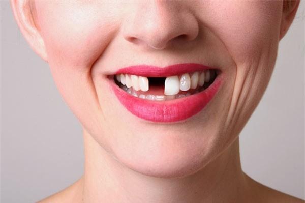 Kết quả hình ảnh cho Không phải cứ bị mất răng thì không có gì