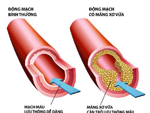 3 dấu hiệu của mỡ máu - căn bệnh giết người âm thầm: Dù gầy hay béo  đều phải cảnh giác - Ảnh 3.