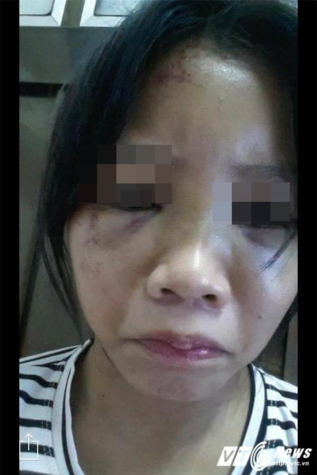 Nữ sinh run sợ kể phút bị bạn châm thuốc lá vào tay, bắt liếm chân - Ảnh 2.