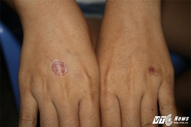 Nữ sinh run sợ kể phút bị bạn châm thuốc lá vào tay, bắt liếm chân - Ảnh 3.