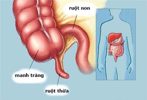 14 tuổi mổ gấp vì đau ruột thừa: Cảnh báo nguy cơ chết người từ hạt ổi - Ảnh 1.