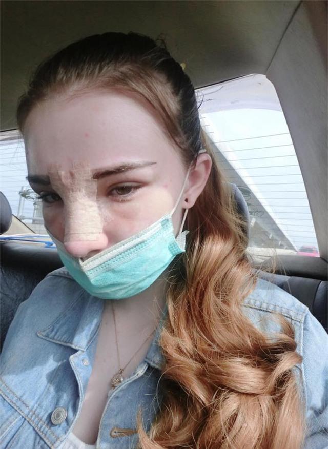 Vỡ mộng khi nhìn thấy hình ảnh nữ thần thoát tục của Thái Lan trước khi phẫu thuật thẩm mỹ - Ảnh 13.