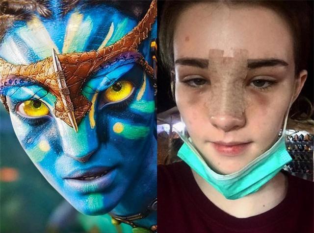 Vỡ mộng khi nhìn thấy hình ảnh nữ thần thoát tục của Thái Lan trước khi phẫu thuật thẩm mỹ - Ảnh 5.
