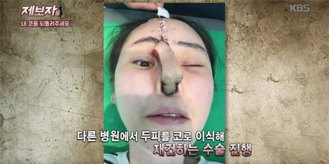 Phẫu thuật thẩm mỹ hỏng, cô gái Hàn Quốc nhận hậu quả đáng sợ - Ảnh 1.