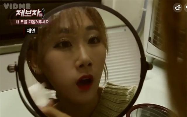 Phẫu thuật thẩm mỹ hỏng, cô gái Hàn Quốc nhận hậu quả đáng sợ - Ảnh 2.