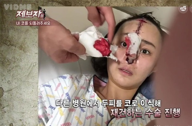 Phẫu thuật thẩm mỹ hỏng, cô gái Hàn Quốc nhận hậu quả đáng sợ - Ảnh 4.