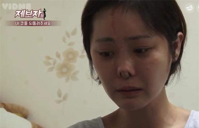 Phẫu thuật thẩm mỹ hỏng, cô gái Hàn Quốc nhận hậu quả đáng sợ - Ảnh 5.
