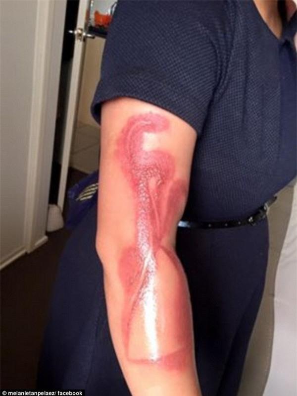 Vết bỏng để lại sẹo trên tay Melanie vì chiếc iPhone đang cắm sạc của cô