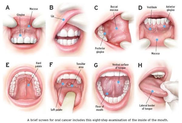 Ngày càng nhiều người bị bệnh ung thư miệng chỉ vì giữ những thói quen này hàng ngày - Ảnh 3.