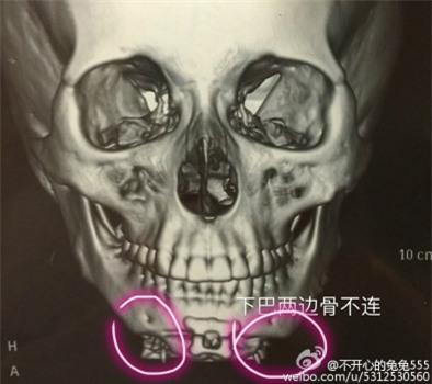 Đi tu sửa nhan sắc, cô gái không những bị phẫu thuật hỏng mà còn bị bác sĩ cưỡng hiếp nhiều lần - Ảnh 3.