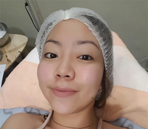 3 phương pháp thẩm mỹ da được dự đoán là sẽ rất đắt hàng dịp cuối năm - Ảnh 7.
