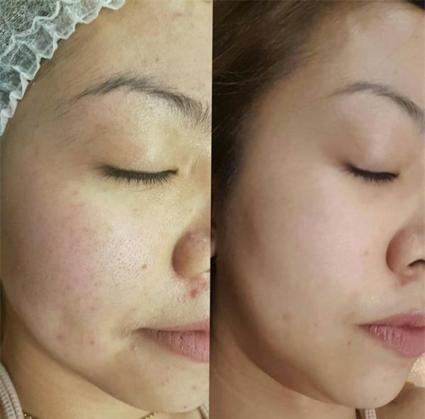 3 phương pháp thẩm mỹ da được dự đoán là sẽ rất đắt hàng dịp cuối năm - Ảnh 8.