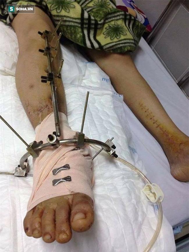 Con gái bị tai nạn có nguy cơ phải cắt cụt chân, cha nghèo cắm sổ đỏ vay tiền chữa trị - Ảnh 4.