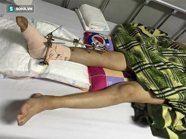 Con gái bị tai nạn có nguy cơ phải cắt cụt chân, cha nghèo cắm sổ đỏ vay tiền chữa trị - Ảnh 7.