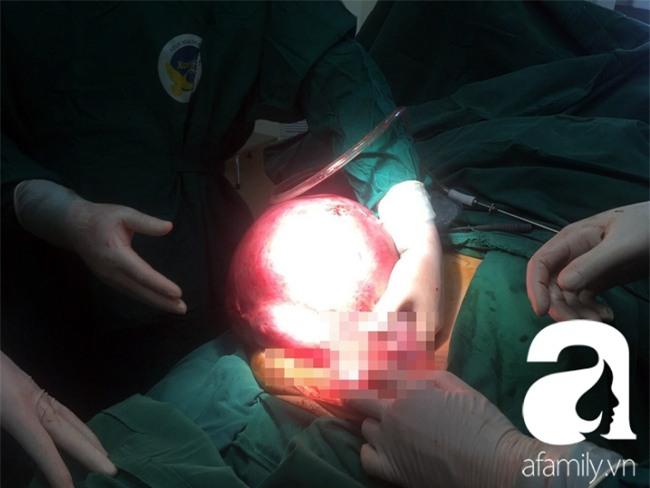 Cứu sống một phụ nữ mang khối u trong tử cung nặng đến…12kg - Ảnh 2.