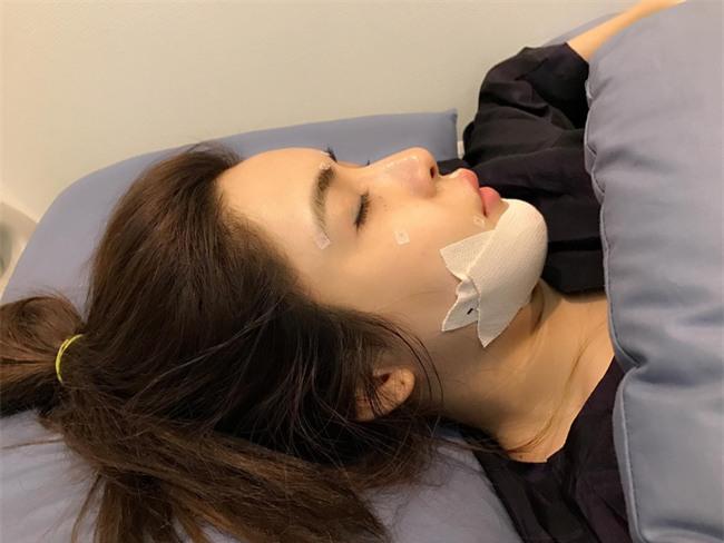 Cô nàng nghiện phẫu thuật thẩm mỹ tá hỏa vì 2 chiếc ốc vít nằm trong cằm độn - Ảnh 1.