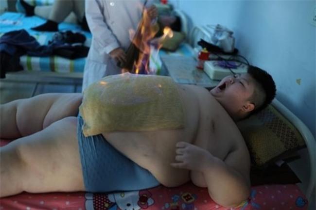 Cậu bé 167kg gây xôn xao dư luận từng kiên trì giảm béo để đến trường giờ ra sao? - Ảnh 11.