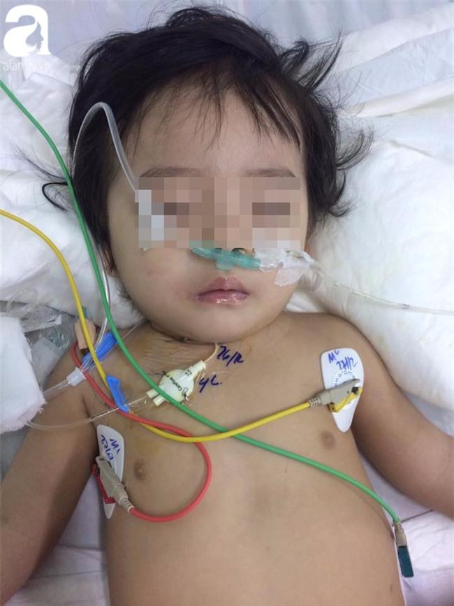 Bé gái 13 tháng tuổi chấn thương sọ não ở nhà trẻ tư, cô giáo xưng mẹ, từ chối nhập viện khiến bé nguy kịch? - Ảnh 4.