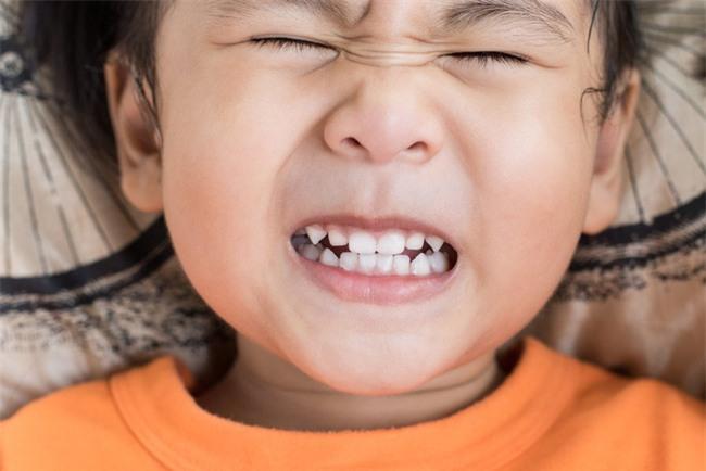 Cách ngăn chặn những hành vi xấu của trẻ theo gợi ý của chuyên gia tâm lý - Ảnh 2.