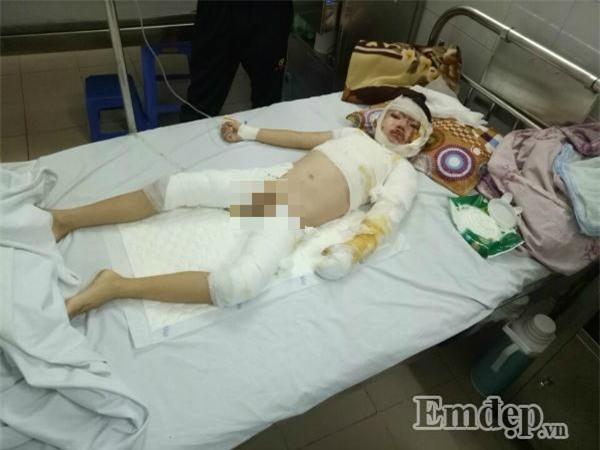 Phẫn nộ hai mẹ con nghi bị hất nước sôi trong lúc ngủ say ở Hà Nội