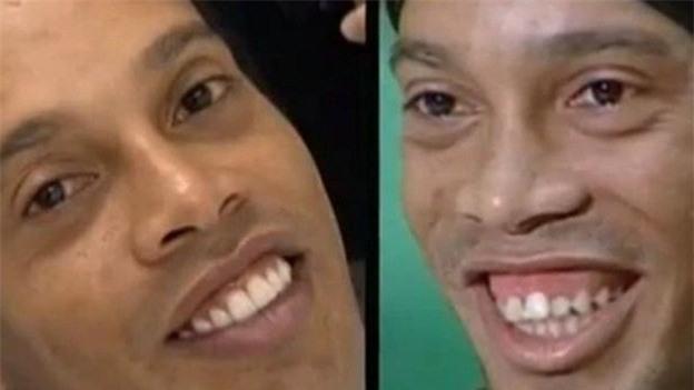 Ronaldo, Beckham và những ngôi sao bóng đá nhờ cậy vào dao kéo - Ảnh 6.