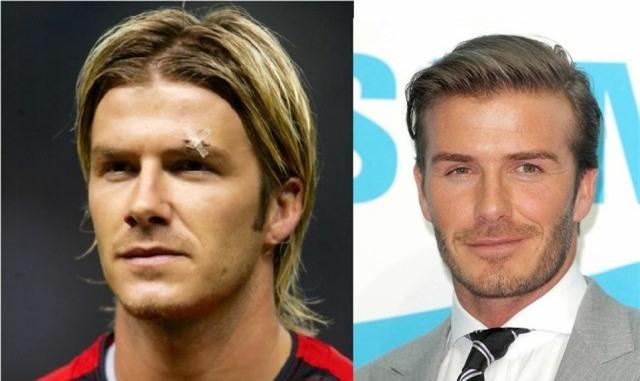 Ronaldo, Beckham và những ngôi sao bóng đá nhờ cậy vào dao kéo - Ảnh 8.