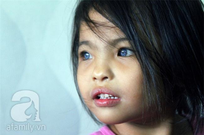 Hai em bé câm điếc có đôi mắt màu xanh bí ẩn ở Sài Gòn đã nghe được những thanh âm đầu tiên - Ảnh 11.