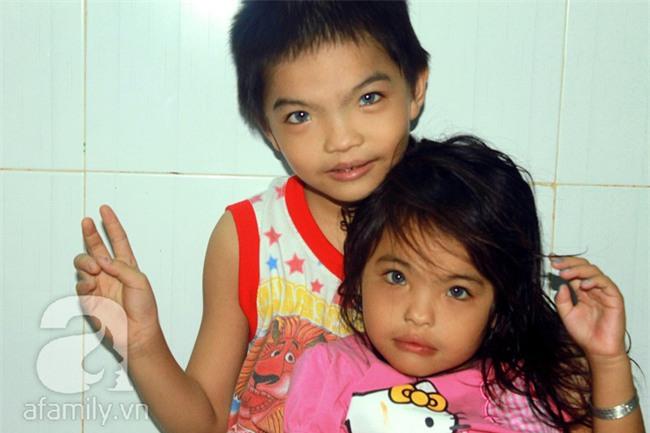 Hai em bé câm điếc có đôi mắt màu xanh bí ẩn ở Sài Gòn đã nghe được những thanh âm đầu tiên - Ảnh 2.