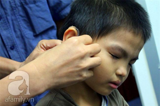 Hai em bé câm điếc có đôi mắt màu xanh bí ẩn ở Sài Gòn đã nghe được những thanh âm đầu tiên - Ảnh 8.