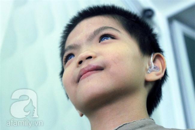 Hai em bé câm điếc có đôi mắt màu xanh bí ẩn ở Sài Gòn đã nghe được những thanh âm đầu tiên - Ảnh 9.