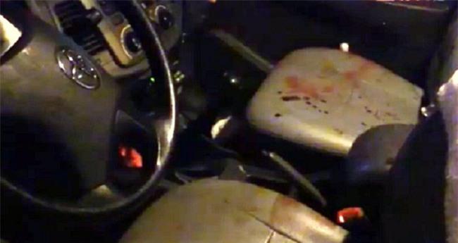 Cướp taxi không thành, nghi can đâm tài xế nhiều nhát rồi gọi điện cho bạn gái đến đón - Ảnh 1.