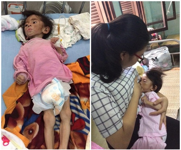 Cái Tết đầu tiên ấm áp nụ cười của em bé Lào Cai suy dinh dưỡng bên mẹ nuôi 9X - Ảnh 1.
