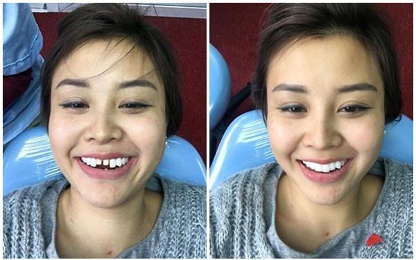 Mẹ bỉm 8X dũng cảm chịu đau, khoe hàm răng mài hẳn... 20 cái để ăn Tết cho xinh đẹp - Ảnh 3.