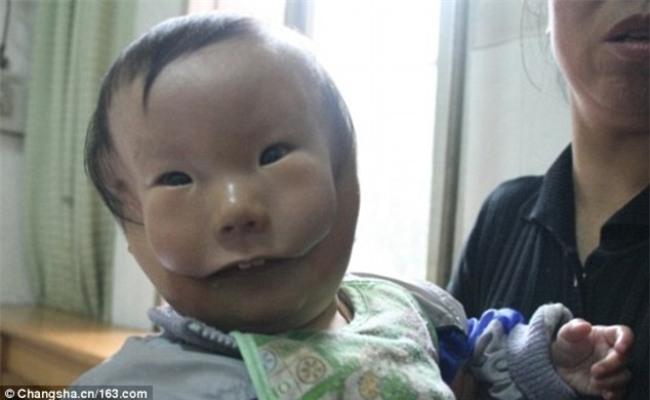 Cậu bé hai mặt lúc nào cũng như đang đeo mặt nạ từ lúc mới sinh - Ảnh 1.