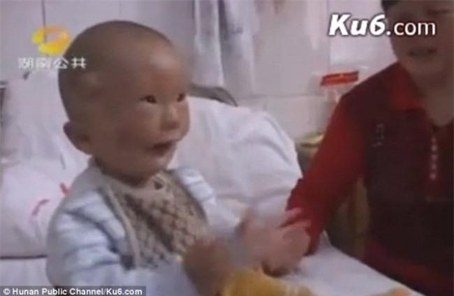 Cậu bé hai mặt lúc nào cũng như đang đeo mặt nạ từ lúc mới sinh - Ảnh 2.