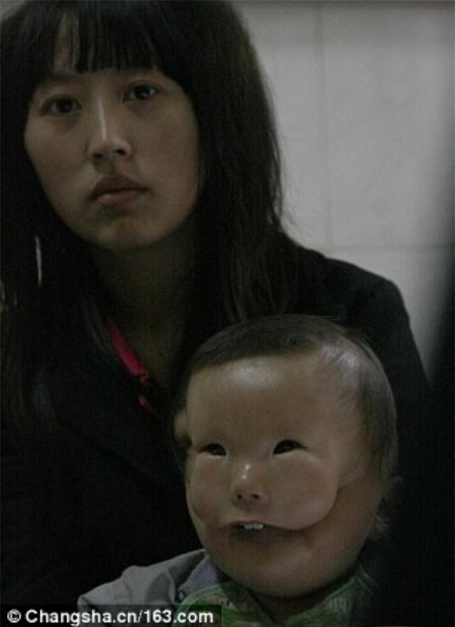 Cậu bé hai mặt lúc nào cũng như đang đeo mặt nạ từ lúc mới sinh - Ảnh 5.