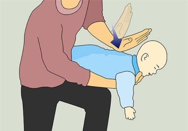 Khi trẻ dưới 3 tuổi bị hóc dị vật cha mẹ cần sơ cứu đúng cách. Tranh minh họa