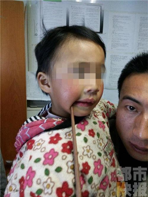 Nếu bạn vẫn còn nghĩ đũa ăn vô hại với trẻ nhỏ thì hãy xem những tai nạn kinh hoàng này - Ảnh 1.