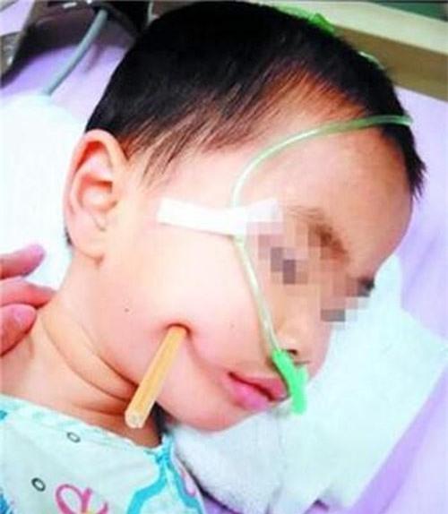 Nếu bạn vẫn còn nghĩ đũa ăn vô hại với trẻ nhỏ thì hãy xem những tai nạn kinh hoàng này - Ảnh 5.