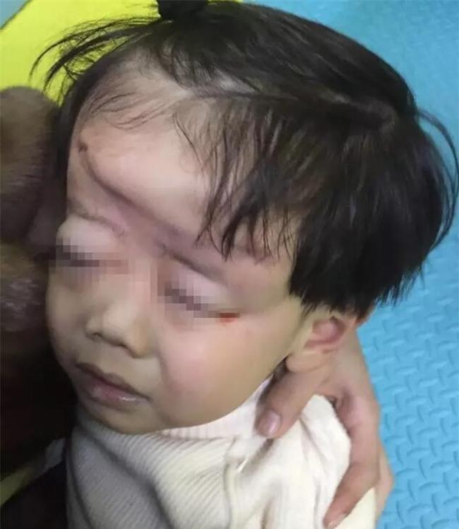 Mẹ mải xem điện thoại, con 4 tuổi bị xe cán biến dạng đầu, hôn mê nhiều ngày trong bệnh viện - Ảnh 1.