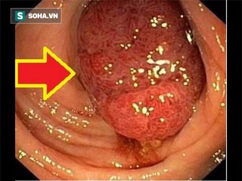 Ung thư vì bỏ qua triệu chứng suốt 10 năm: Bác sĩ chỉ rõ 3 dấu hiệu chớ coi thường - Ảnh 2.