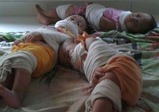 Lại xuất hiện hình ảnh 3 trẻ nhỏ bị bịt miệng, trói chân tay như xác ướp tại trường mầm non gây phẫn nộ - Ảnh 1.
