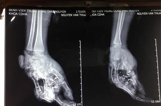 Cháu bé 10 tuổi bị pin điện thoại nổ gây nát bàn tay - Ảnh 2.