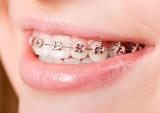Những nguyên nhân không ngờ khiến bạn bị chảy máu nướu răng - Ảnh 6.