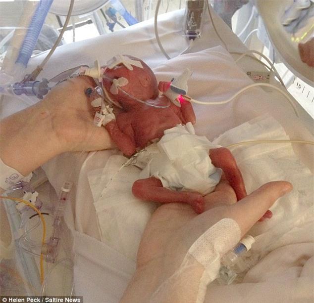 Sinh ra chỉ bé xíu bằng bàn tay, cặp song sinh sống sót thần kỳ - Ảnh 1.